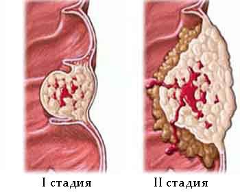 Поражение тканей щитовидной железы при раке первой и второй степени