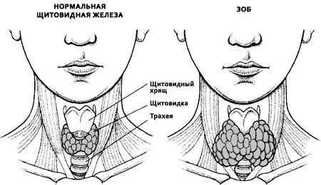 нормальная щитовидка и зоб