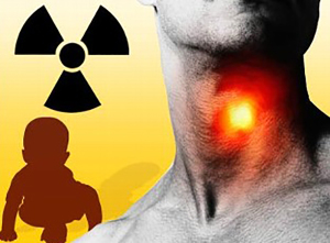 throat_radiation_080529_mn