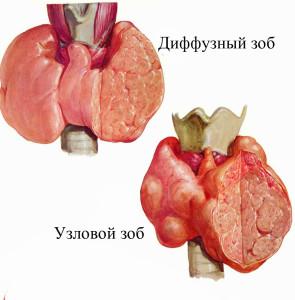 Визуализация и признаки узлового зоба и диффузного зоба