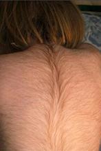 Гипертрихоз (избыточное оволосение) спины на фоне гипотиреоза